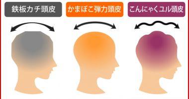 あなたの頭皮はどれ?頭皮診断